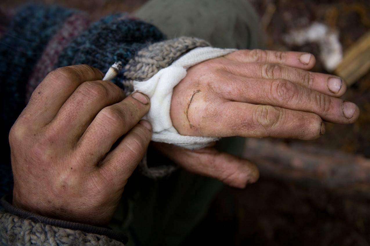Kais von harter Arbeit gezeichnete Hände. Kürzlich zog er sich beim Holzhacken eine Verletzung zu, bei der er sich bis auf den Knochen in die Hand hackte.